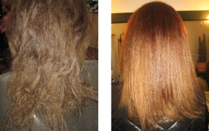 Lasje na levi, pred terapijo, in na desni, po LITERAM terapiji.