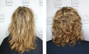 Na levi je poškodovan las, na desni pa zdrav las po terapiji LITERAM.