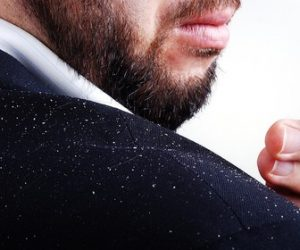 Are you struggling with dandruff?